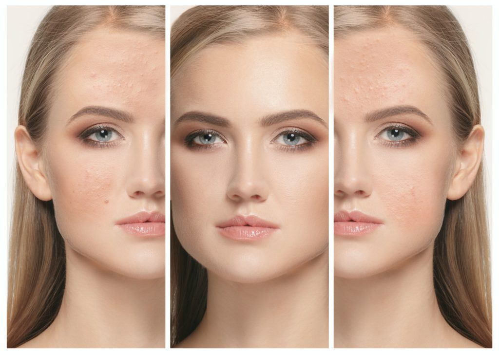 Woman before and after treatment